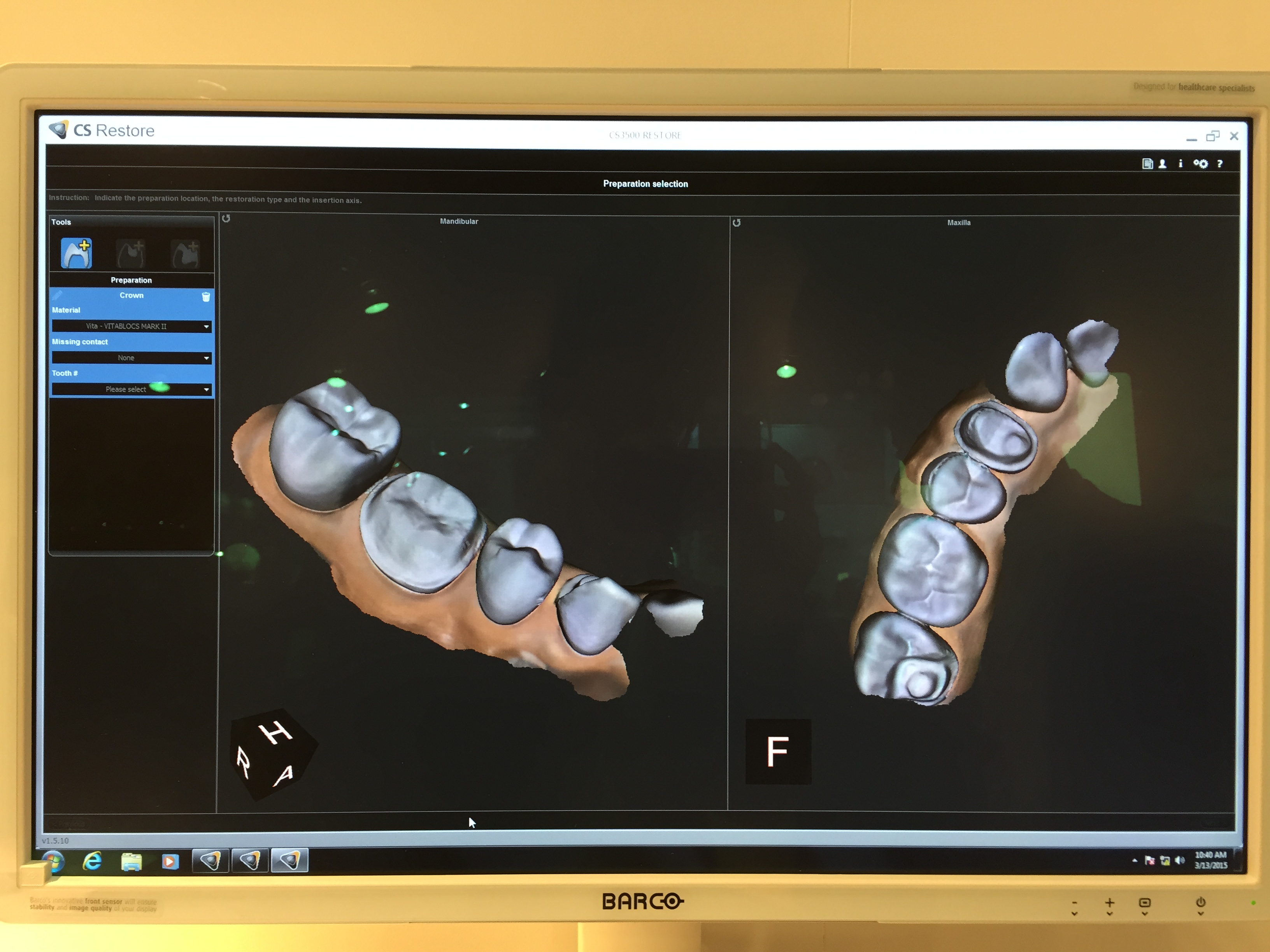 Ids Review Intraoral Scanner Part 4 Zdigitaldentistry